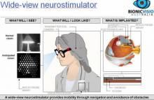 Новое устройство возвращает зрение слепым людям